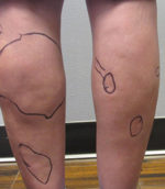 Liposuction Revision & Cellulite Reduction