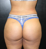 Brazilian Butt Lift for Thinner Patients