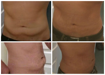 Bodytite Before & After