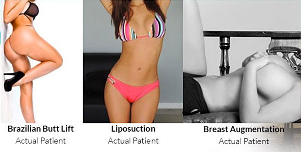 Plastic Surgery Los Angeles Cosmetic Surgery Beverly Hills Bbl